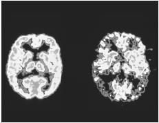 Colored positron emission tomography (PET) brain scans comparing a normal brain (left) with the brain of a person with Alzheimer's disease.  (Photo Researchers, Inc. Reproduced by permission.) See color insert for color version of photo.