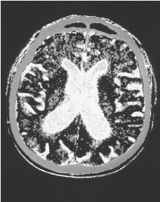 Computerized axial tomography (CAT) scan of a human brain with Parkinson's disease showing atrophy. (GJLP/CNRI/Phototake. Reproduced by permission.) See color insert for color version of photo.