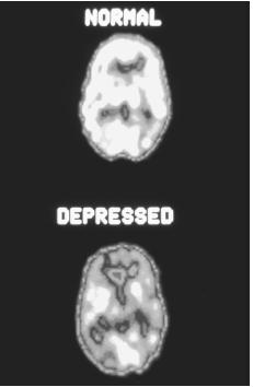 Two false-colored positron emission tomography (PET) scans of human brains. At the top is the brain of a healthy person, and below that is the brain of a depressed person.  (NIH/Science Source, National Audubon Society Collection/ Photo Researchers, Inc. Reproduced by permission.) See color insert for color version.
