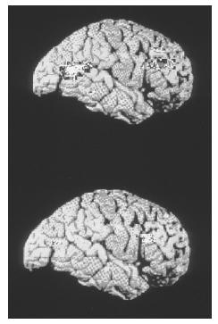 Colored positron emission tomography (PET) scans comparing the brain of a depressed person (top) with the brain of a healthy person. (Photo Reasearchers, Inc. Reproduced by permission.) See color insert for color version of photo.
