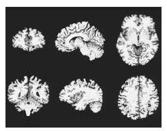 Colored positron emission tomography scans (PET scans) of a human brain, showing active areas in obsessive-compulsive disorder. In this patient, some parts of the brain show increased activity as the symptoms strengthen (areas shown in the top row), while other brain areas show decreased activity as symptoms strengthen (bottom row). (Wellcome Dept of Cognitive Neurology. Photo Researchers, Inc./ Science Photo Library. Reproduced by permission.) See color insert for color version of photo.