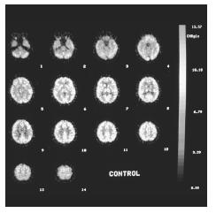 A positron emission tomography (PET) scan of the human brain. (Jon Meyer. Cutom Medical Stock Photo. Reproduced by permission.) See color insert for color version of photo.