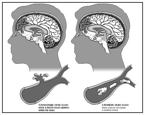 A hemorrhagic stroke (left) compared to a thrombotic stroke (right). (Illustration by Hans & Cassady, Inc.)