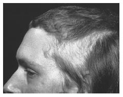 Left side of a man's scalp showing the effects of trichotillomania. (Custom Medical Stock Photo. Reproduced by permission.)